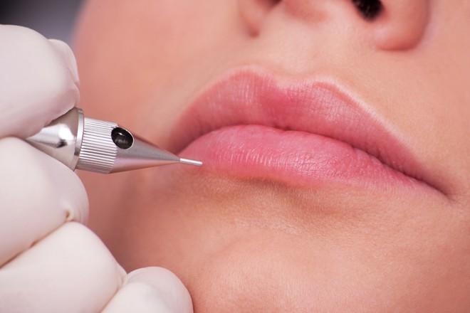 Bác sĩ tiến hành bổ sung Collagen để giúp bờ môi căng mọng quyến rũ hơn.