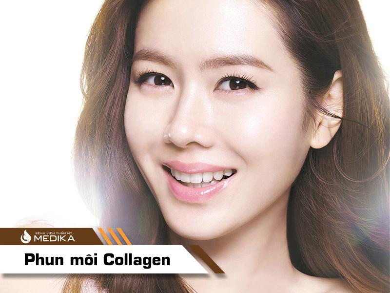 Phun môi Collagen tại bệnh viện thẩm mỹ MEDIKA