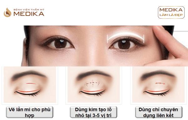 Phương pháp Bấm mí mắt đa điểm Hàn Quốc ở Bệnh viện thẩm mỹ MEDIKA