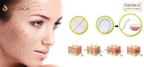 Phương pháp Căng da bằng chỉ Diamond 3D ở Bệnh viện thẩm mỹ MEDIKA.vn