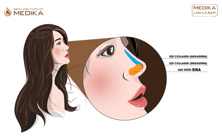 Phương pháp nâng mũi siêu cấu trúc DIKA ở bệnh viện thẩm mỹ MEDIKA