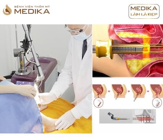 Phương pháp Thu hẹp và trẻ hóa vùng kín ở Bệnh viện thẩm mỹ MEDIKA