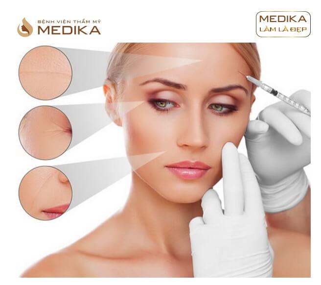 Phương pháp Xóa nhăn bằng Filler Botox ở Bệnh viện thẩm mỹ MEDIKA
