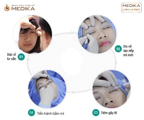 Quy trình Bấm mí mắt đa điểm Hàn Quốc ở Bệnh viện thẩm mỹ MEDIKA