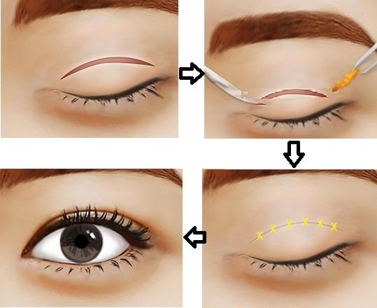 Kỹ thuật khâu tạo hình mí mắt liền mảnh và mịn