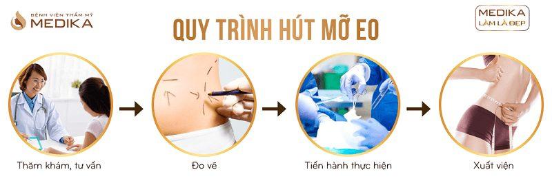 Quy trình Hút mỡ eo ở Bệnh viện thẩm mỹ MEDIKA