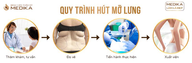 Quy trình Hút mỡ lưng ở Bệnh viện thẩm mỹ MEDIKA
