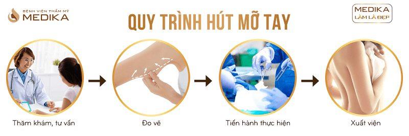 Quy trình Hút mỡ tay ở Bệnh viện thẩm mỹ MEDIKA