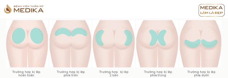 Quy trình Nâng vòng 3 bơm mông độn mông ở Bệnh viện thẩm mỹ MEDIKA