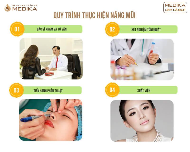 Quy trình phẫu thuật nâng mũi siêu cấu trúc DIKA ở bệnh viện thẩm mỹ MEDIKA