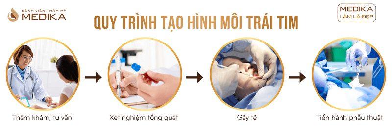 Quy trình Tạo hình môi trái tim ở Bệnh viện thẩm mỹ MEDIKA