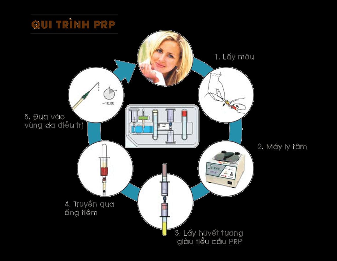 trẻ hóa da bằng công nghệ PRP