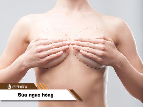 Chỉnh sửa ngực hỏng