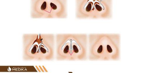 Tạo hình đầu mũi