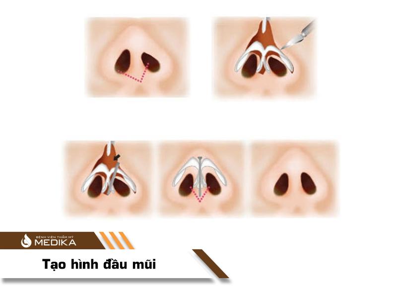 Tạo hình đầu mũi MEDIKA