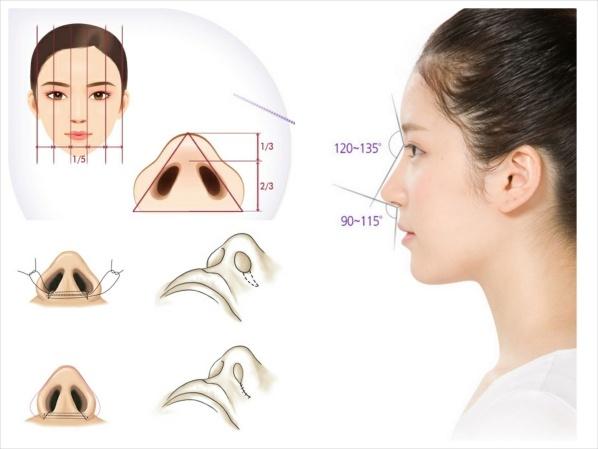 Thu gọn cánh mũi không gây đau đớn hay để lại sẹo trên cánh mũi của bạn