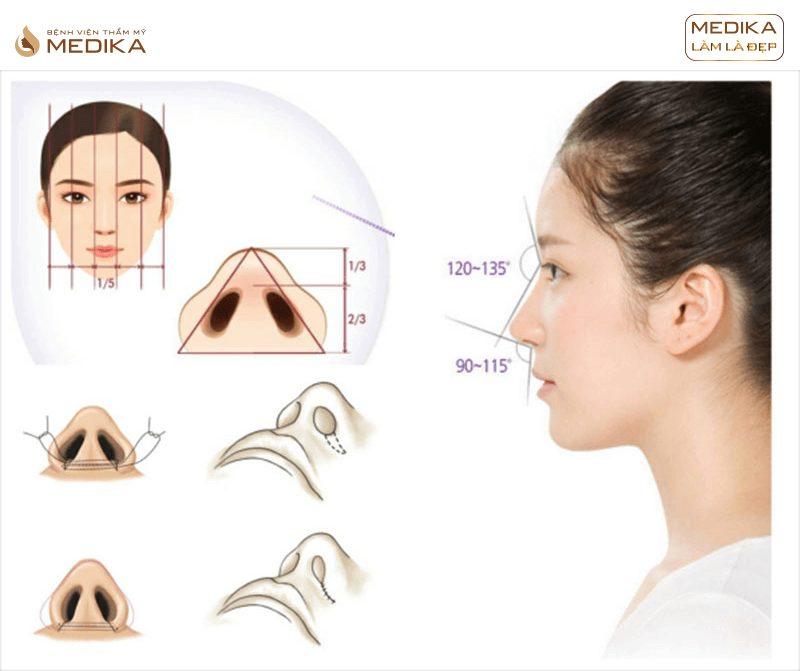 Thu gọn cánh mũi ở bệnh viện thẩm mỹ MEDIKA