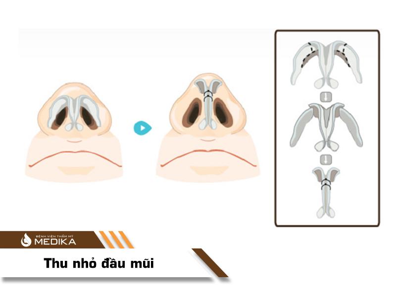 Phẫu thuật thu nhỏ đầu mũi - MEDIKA.vn
