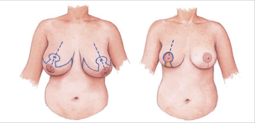 Sự khác biệt sau khi thực hiện phẫu thuật thu gọn vòng 1 phì đại