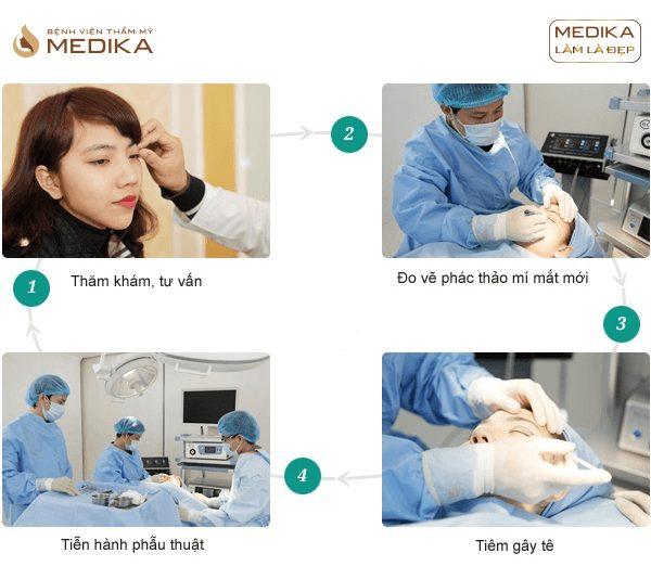 Tiến hành Bấm mí mắt đa điểm Hàn Quốc ở Bệnh viện thẩm mỹ MEDIKA