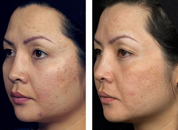 điều trị sẹo bằng laser co2