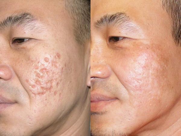 Kiên trì thực hiện đúng và đủ liệu trình bạn sẽ xóa bỏ được dứt điểm các vết sẹo rỗ trên mặt.