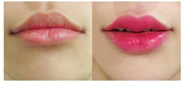 Giúp bạn có đôi môi cuốn hút, gương mặt hài hòa và thanh tú hơn.