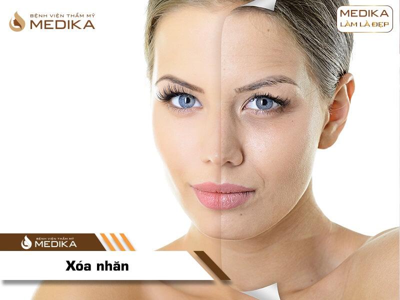 Xóa nhăn bằng Filler Botox ở Bệnh viện thẩm mỹ MEDIKA