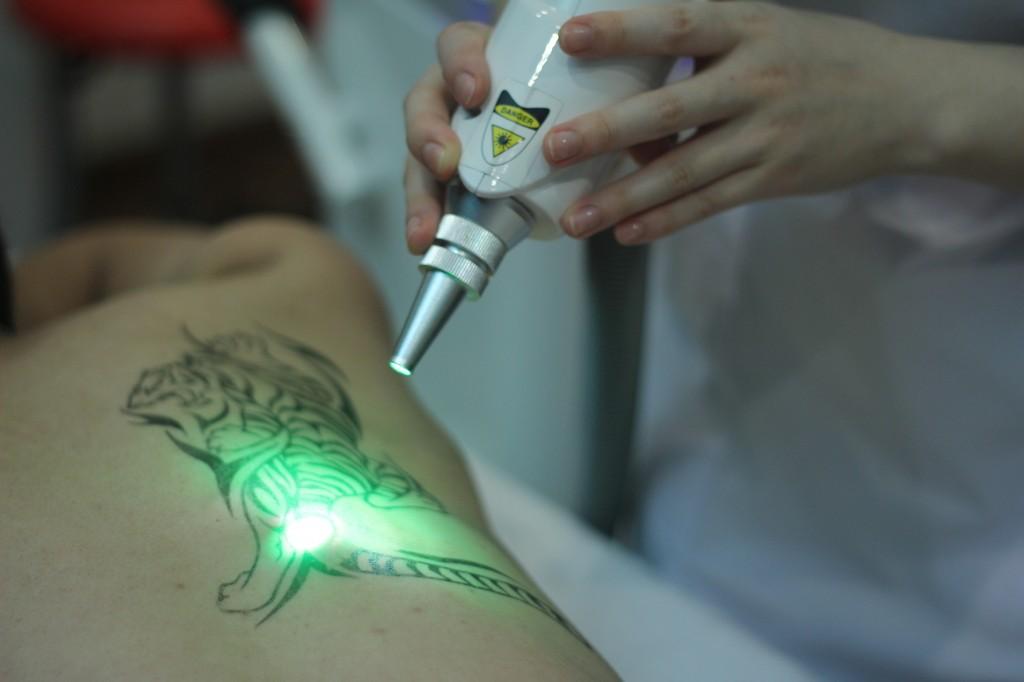 xóa xăm laser