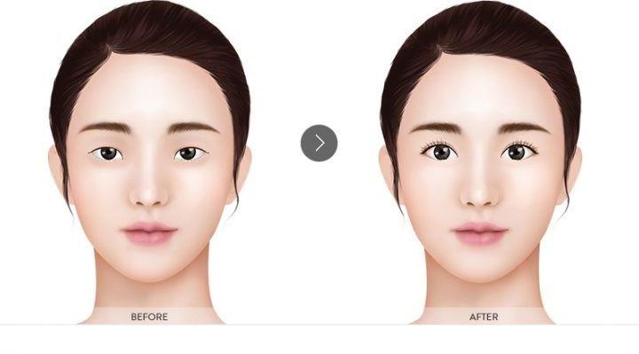 Bấm mí Hàn Quốc - Phương pháp tạo mắt hai mí to tròn tự nhiên