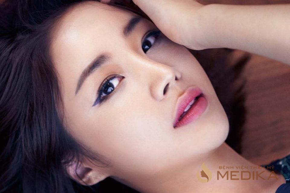 Bấm mí mắt Hàn Quốc ở Bệnh viện thẩm mỹ MEDIKA