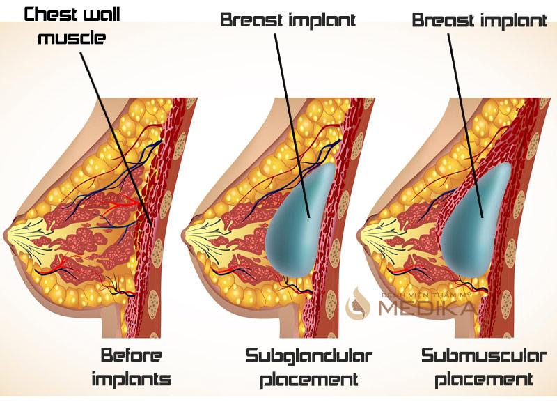 Phẫu thuật nâng ngực nội soihiện sở hữu 2 cách thức