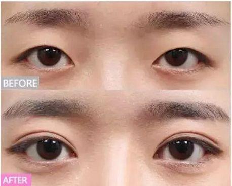 Quá trình phục hồi của bất kỳ một ca phẫu thuật sau cắt mí mắt Hàn Quốc