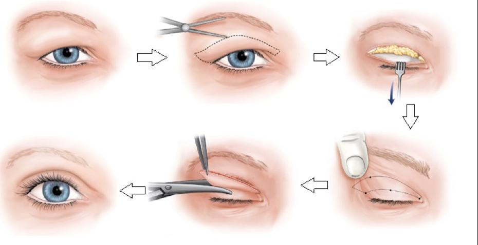 Bệnh viện thẩm mỹ MEDIKA tự hào là một trong những điểm đến cắt mí mắt