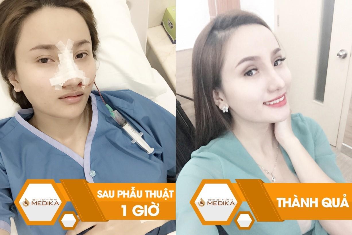 Khách hàng sau khi nâng mũi tại Bệnh viện thẩm mỹ MEDIKA sở hữu dáng mũi đẹp tự nhiên và không bị bóng đỏ