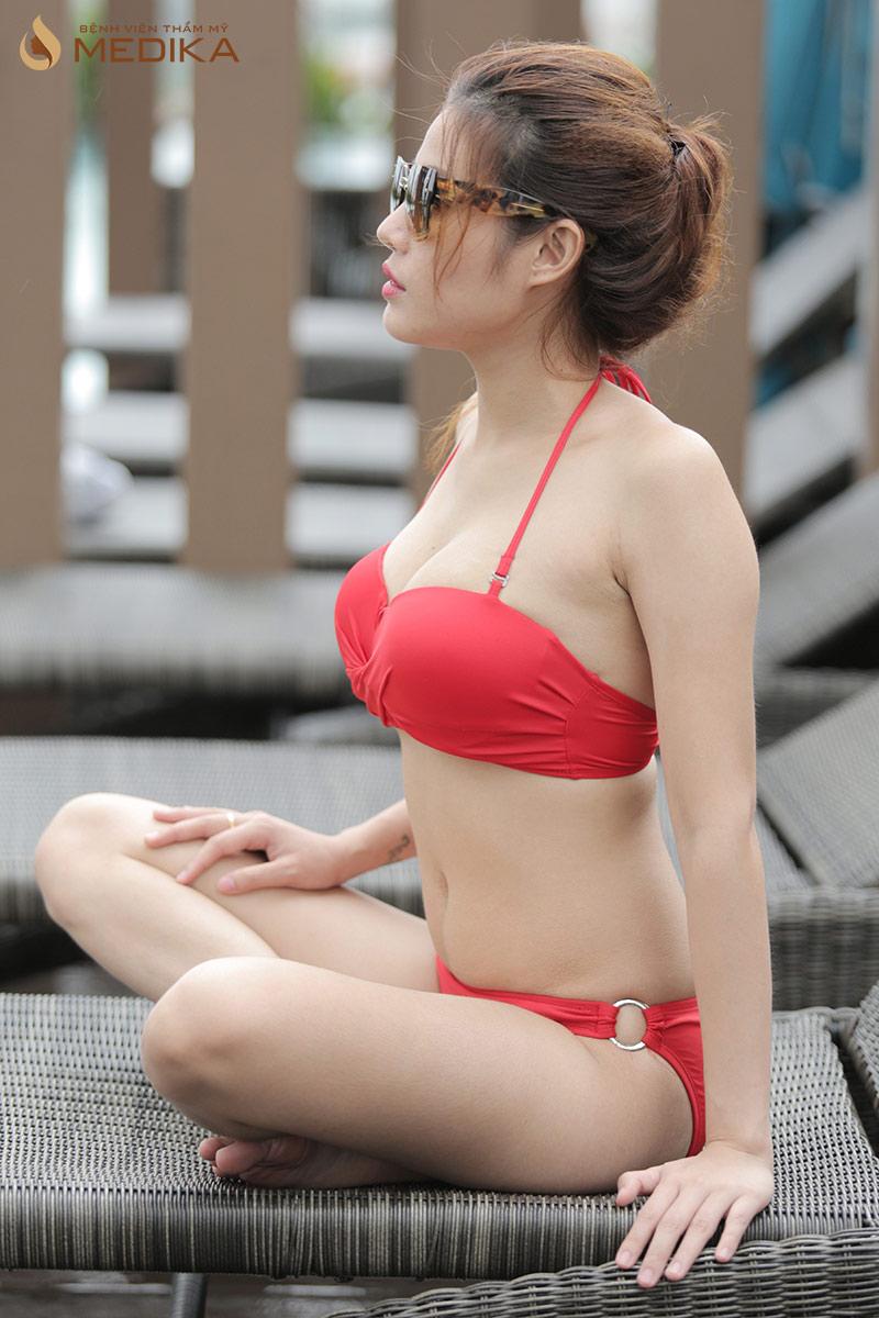 Một khách hàng nâng vòng 1 thành công tại Bệnh viện thẩm mỹ MEDIKA, tự tin diện Bikini quyến rũ