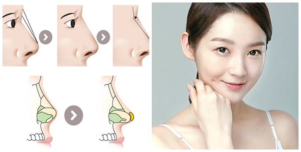 Trong kỹ thuật nâng mũi S line sụn tự thân được bọc hoàn toàn cho vùng đầu mũi (thường là sụn vành tai)