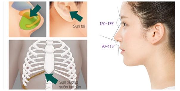 Bác sĩ sẽ tiến hành kết hợp nâng mũi cấu trúc bằng cả sụn tự thân và sụn nhân tạo