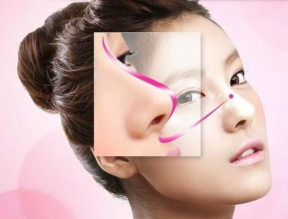 Thế nào là dáng mũi đẹp chuẩn S line?