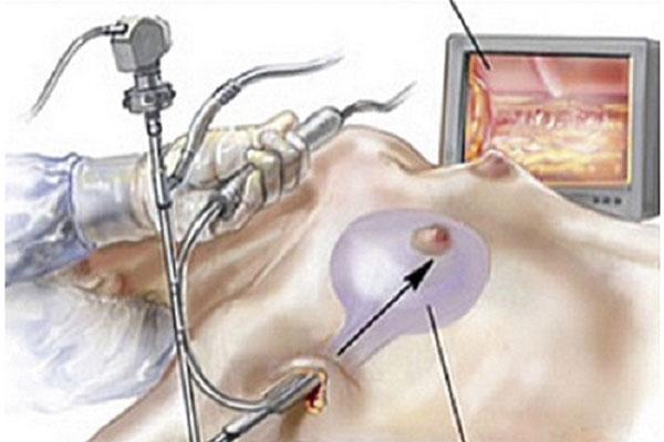 Mọi thao tác của nâng vòng 1 nội soi đều có hỗ trợ của thiết bị nội soi, hạn chế xâm lấn, không để lại sẹo
