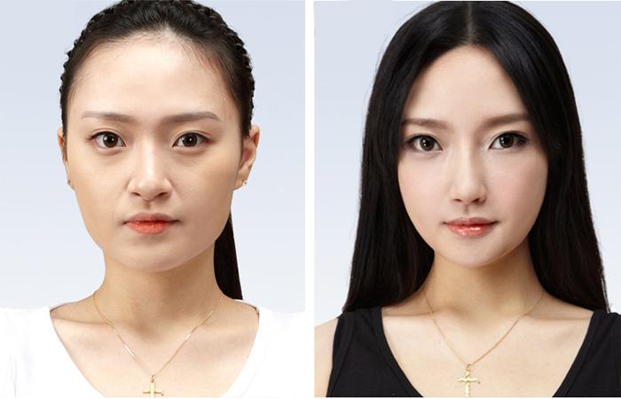 Thu gọn cánh mũi không để lại sẹo hoặc lộ rõ bất kỳ dấu vết thẩm mỹ nào