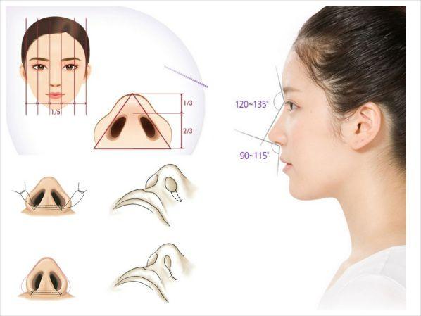 Kỹ thuật cuộn tròn cánh mũi nên hai cánh mũi không bị ép dẹp hay dài xuống