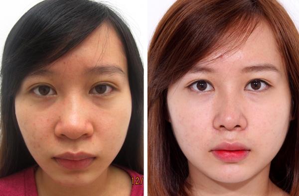 Kết quả thẩm mỹ mũi tại BVTM MEDIKA