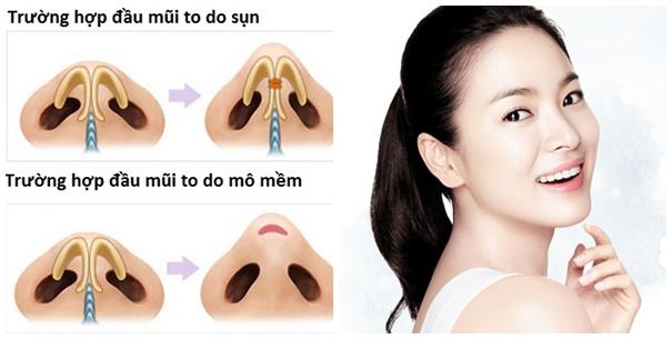 Kỹ thuật thu nhỏ đầu mũi được thực hiện ở bên trong khoang mũi