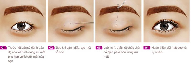 Bấm mí mắt có hại không?