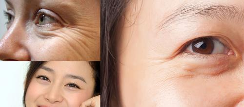 Bọng mí mắt là gì? Cách khắc phục bọng mí mắt