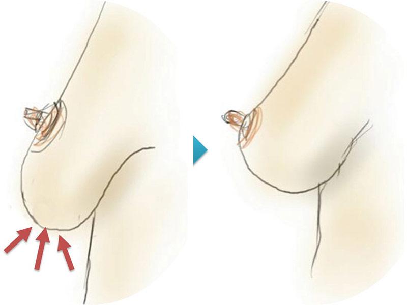 Phương pháp nâng ngực chảy xệ không để lại sẹo dọc?
