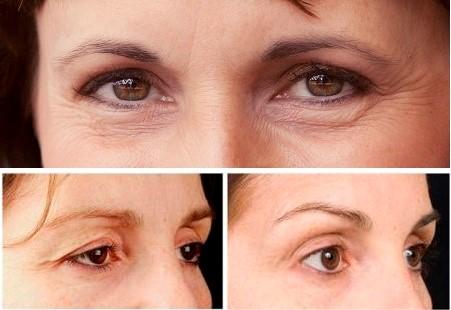 Cắt da thừa mí mắt kết hợp lấy mỡ mí mắt tại MEDIKA