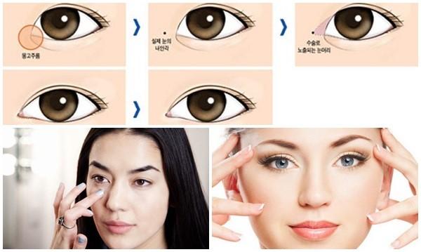 Phẫu thuật mắt to Barbie đạt kết quả tốt và đẹp tự nhiên