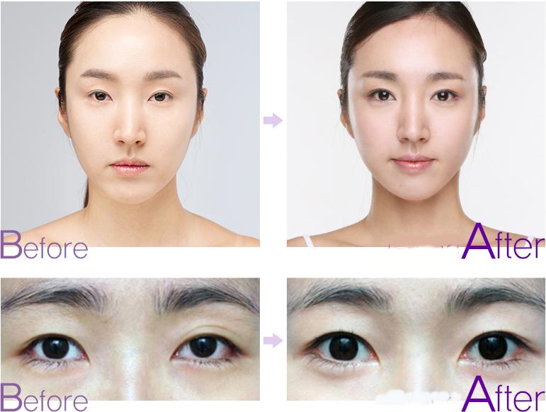 Mở rộng góc mắt là một tiểu phẩu đơn giản hoàn toàn không để lại sẹo